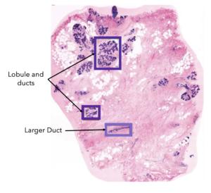 Breast tissue under the microscope